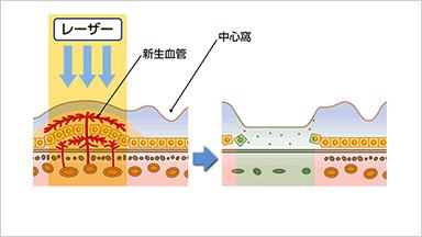 網膜光凝固術