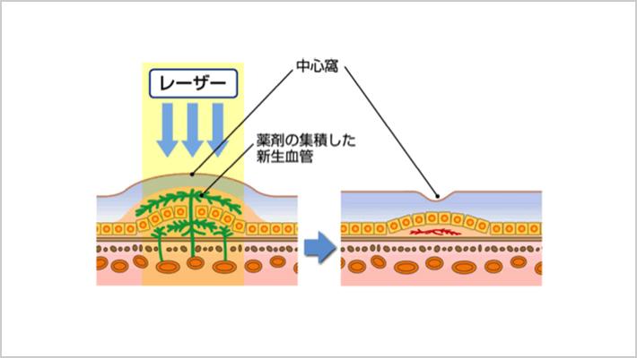 光線力学療法
