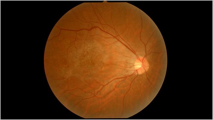 EPIRETINAL MEMBRANE 網膜前膜(黄斑上膜)