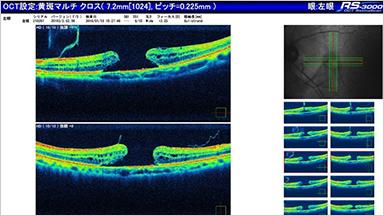 MACULAR HOLE 黄斑円孔