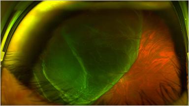RETINAL DETACHMENT 網膜剥離