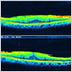 網膜硝子体手術の実際~網膜前膜~