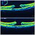 網膜硝子体手術の実際~横紋円孔・裂孔原生網膜剥離・硝子体出血~