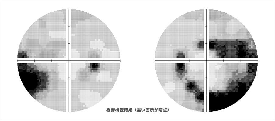 視野検査結果(黒い箇所が暗点)