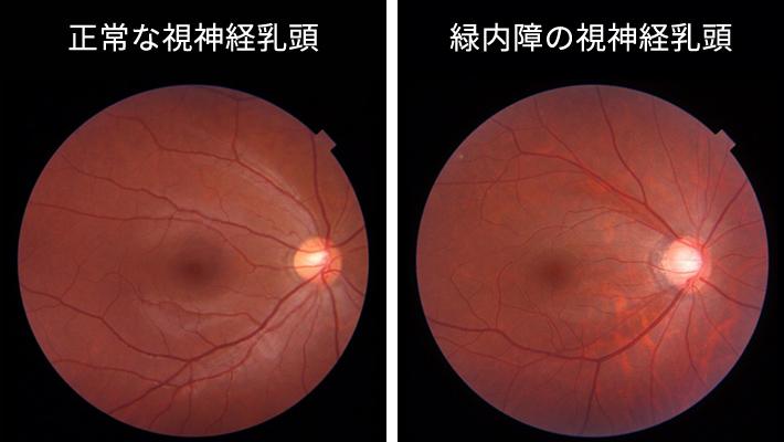 正常な視神経乳頭緑内障の視神経乳頭