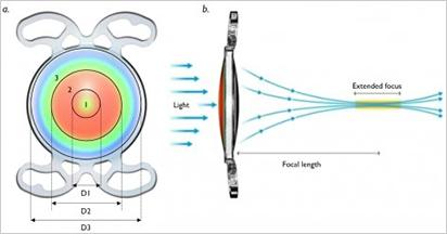 PREMIUM02選定療養非対象(自由診療)のプレミアム眼内レンズ