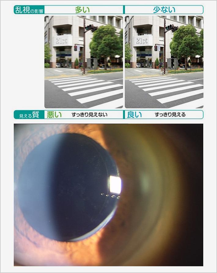 INSURANCE保険適応内の眼内レンズ