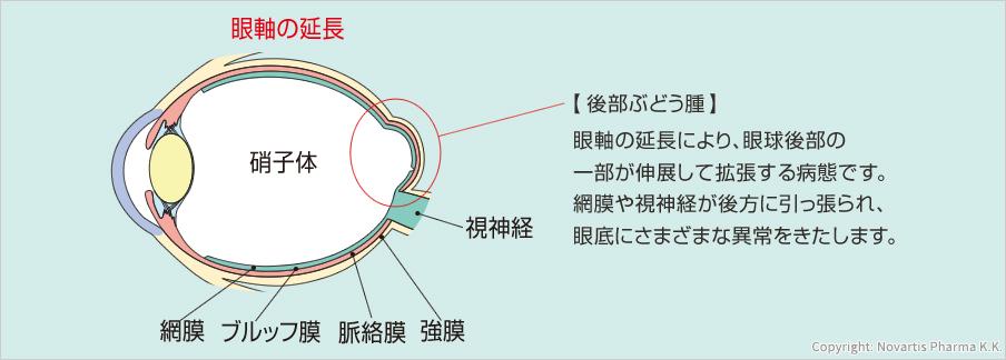 眼軸の延長硝子体視神経網膜 ブルッフ膜 脈絡膜 強膜【後部ぶどう腫】眼軸の延長により、眼球後部の一部が伸展して拡張する病態です。網膜や視神経が後方に引っ張られ、眼底にさまざまな異常をきたします。