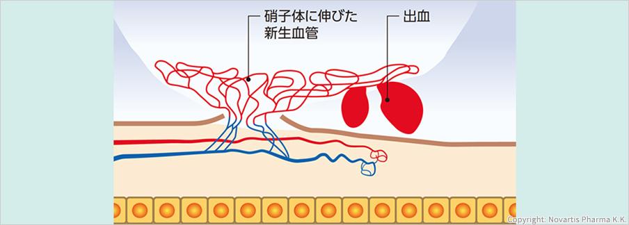 硝子体に伸びた新生血管出血Copyright: Novartis Pharma K.K.
